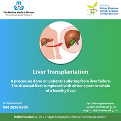 Liver disease severe enough to require a liver transplant can come from many causes. For more details call 044 2656 8300 Liver Disease, Kidney Disease, Social Organization, Liver Failure, Healthy Liver, Cardiology, How To Stay Healthy, Surgery, Health Care