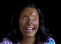 Nasreen Sharif, 26, an acid burn victim who is now totally blind, poses June 24, 2007 in Islamabad, Pakistan. Nasreen was burned when she was only 15 years old after rejecting a marriage from a much older man who was her father's cousin. Photographer: Paula Bronstein ~K~ the atrocities of evil men. I can only hope she is smiling because she did not marry him