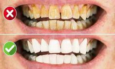 Healthy Teeth, Good To Know, Health And Beauty, Health Fitness, Cooking Recipes, Tips, Art, Medicine, Art Background