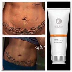 Love the results with Nerium Firm! Love the results with Nerium Firm! Natural Skin Tightening, Skin Tightening Cream, Beauty Care, Beauty Skin, Beauty Hacks, Skin Removal Surgery, Skin Firming Lotion, Taning Lotion, Tighten Loose Skin