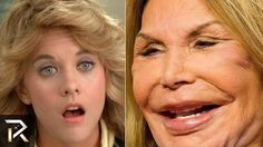 Celebs Discover Famous People Who Are Unrecognizable Today Bad Celebrity Plastic Surgery, Extreme Plastic Surgery, Plastic Surgery Gone Wrong, Plastic Surgery Photos, Bad Plastic Surgeries, Eyeliner For Hooded Eyes, Hooded Eye Makeup, Makeup Eyes, Worst Celebrities