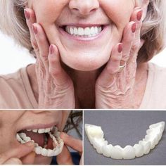 Get OFF Today!Perfect Smile Snap-On Braces white color braces - White Things Get Off Today!perfect Smile Snap-On Braces Healthy Beauty, Health And Beauty, Perfect Smile Teeth, Veneers Teeth, Teeth Braces, Braces Smile, Dental Cosmetics, Stained Teeth, Dental Crowns