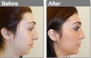 Here's an example of the look a chin implant can achieve. 702-254-0500