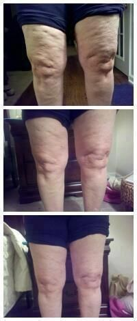 Wow, these are amazing results!! Using that crazy wrap thing and defining gel!  http://45towow.myitworks.com/shop/#54