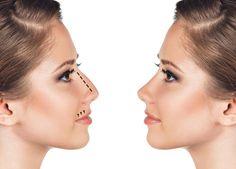 Au 6 ème siècle avant JC des interventionsesthétiques de remplacement de nez ont été mis en oeuvre déjà par la civilisation égyptienne et représentent ainsi...