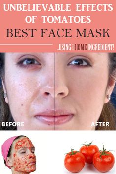 Unbelievable effects of tomatoes BEST FACE MASK using home ingredient! Unbelievable effects of tomatoes BEST FACE MASK using home ingredient! Tomato Benefits, Health Benefits Of Tomatoes, Tomato Face Mask, Homemade Beauty Tips, Best Face Products, Beauty Products, Best Face Mask, Flawless Skin, Facial Masks