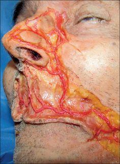 Cadaver dissection of Facial artery