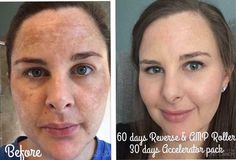 Rodan + Fields Reverse Regimen is for the appearance of brown spots, dullness and discoloration. Clean the slate and see a brighter future for your skin. 60 day money back guarantee.
