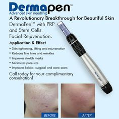 DermaPenTM with PRP and Stem Cells Facial Rejuvenation.  Application & Effect  Skin tightening, lifting and rejuvenation  Reduces fine lines and wrinkles  Improves stretch marks  Minimizes pore size  Improves keloid, surgical and acne scars  View More at: www.bellaformaclinic.com