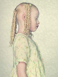 Albinismo é tema de livro de arte. Gustavo Lacerda apresenta seu mais premiado trabalho