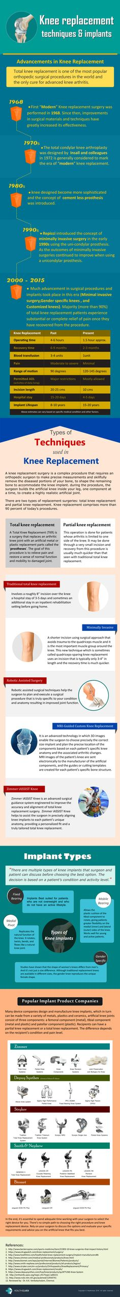 10-minute guide to Knee Replacement #Infographic #Health