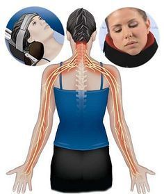 Cervical Radiculopathy Or Pinched Nerve In The Neck Causes Pain, Numbness & Tingling In The Neck, Arms & Hands - Causes & Treatment To Help With Symptoms
