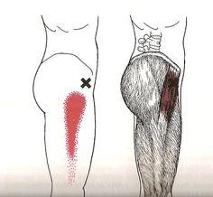Dor no quadril Bursite trocantérica, Síndrome Dolorosa da região trocantérica, Dor da bursite trocantérica - Músculo Tensor da Fáscia Lata