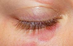 Eyelid Eczema can spread around the eyes