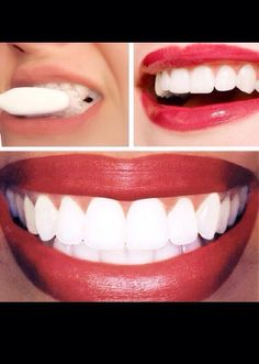 DIY Teeth Whitening Treatment With Results First Time