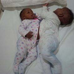 #Nigerian Conjoined twins successfully separated - The Nation Newspaper: The Quint Nigerian Conjoined twins successfully separated The…