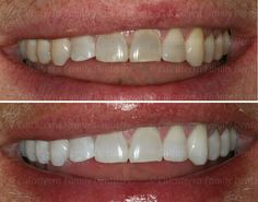 Before and after photos of Kor Whitening done in our office. This is a case we did - this is not a stock photo supplied by Kor. Dental Photos, West Haven, Photo Supplies, Dental Services, Teeth Whitening, Tooth Bleaching, Teeth Bleaching
