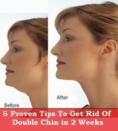 5 Proven Tips to Get Rid of Double Chin in 2 Weeks