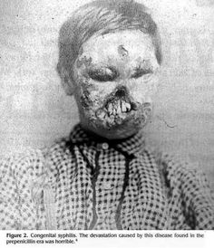 The results of Congenital Syphilis before penicillin was discovered.