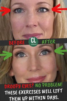 Saggy Eyes, Droopy Eyes, Makeup For Droopy Eyelids, Facial Yoga, Facial Massage, Beauty Tips And Secrets, Health And Beauty Tips, Beauty Hacks, Beauty Care