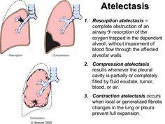 pulmonary infiltrate vs atelectasis | nursing school | pinterest, Cephalic Vein