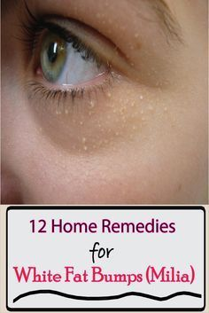 homeopathic remedy for milia