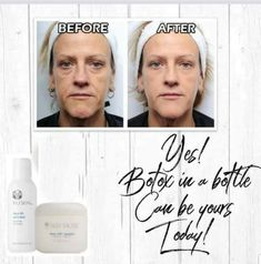 How To Look Younger Immediately! This gentle product is composed of two parts – … Younger Skin, Younger Looking Skin, Look Younger, Facelift Before And After, Galvanic Spa, Instant Face Lift, Smooth Face, Face Tips, Face Skin