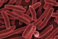 WHAT IS E COLI? (Escherichia Coli) is a bacterium which can be found in the lower intestine of most warm blooded life forms, including humans. Most e coli traits have no effect and show no signs of being present. These make up part of the collection of micro-organisms that exist within the human Read More