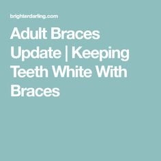 Entering month four of braces at 30 with progress photos, this month's adult braces update talks about all the products I use to keep my teeth super white! Teeth Whitening Cost, Teeth Whitening Procedure, Activated Charcoal Teeth Whitening, Teeth Whitening System, Whitening Kit, Braces Dentist, Get Whiter Teeth, Dental Facts