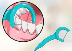 Yellow teeth are a common problem nowadays. This discoloration can keep you from smiling and also make you self-conscious. Remove Yellow Stains, Dental Assistant, Oral Health, Dentistry, Schools, How To Remove, Make It Yourself, Simple, Teeth