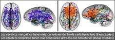 Aceprensa | El cerebro tiene sexo
