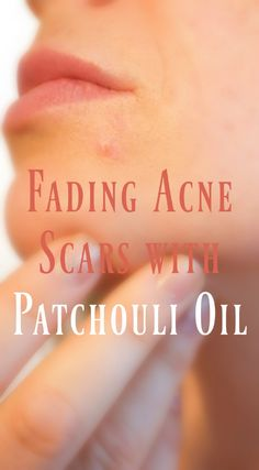 Fading Scars with Patchouli Oil #Oils #Herbs #Skincare #Pimples #Acne #EssentialOils