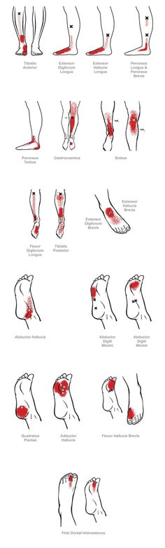 , Trigger Point Referral Pain Patterns for the Ankle & Foot Myofascial pain (muscle pain) can result from sprains or strains of a joint, e. Trigger Point Therapy, Massage Techniques, Trigger Points, Muscle Pain, Massage Therapy, Physical Therapy, Reiki, Medical, Arthritis Remedies