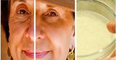 Milhares de mulheres estão usando este creme caseiro para rejuvenescer sua pele Facial e se livrar das rugas! Você vai ficar anos mais nova (Receita) - Dicas e Truques Online