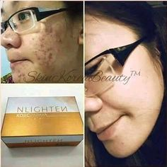 Natures Lightening and Nourishing Beauty Bar Soap (Triple Lightening with Glutathione Kojic Acid and Papaya Extract)- 135g as packed  NLIGHTEN Kojic Papaya with Glutathione Soap  clears ACNE and repair the damaged skin cells.  Effect includes curing and reducing  Pimples / Acne  Blackheads  Whiteheads  Redness from Inflammation  Blemishes  Oiliness  Acne scars  Bacteria  Other beneficial effects  Help repair cells damaged by blemish  Promotes inner health & outer beauty  Be Nlightened with…