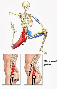 I've been seeing a LOT of tight psoas muscles lately! This muscle attaches to your lower spine and to your thigh bone. If it's tight (sitting too much?) it pulls your lower back. It's ONE of the common causes of lower back pain! If you can stretch this regularly then your lower back may feel a lot better! (makes your tummy look a bit flatter too.) ;)