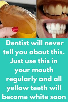 Dentist will never tell you about this. Just use this in your mouth regularly and all yellow teeth will become white soon Your smile can say many things without a word and a shining set of super white teeth can make your more attractive. Most common cause Teeth Whitening Remedies, Teeth Whitening System, Natural Teeth Whitening, Whitening Kit, Instant Teeth Whitening, Homemade Teeth Whitening, Teeth Health, Oral Health, Dental Health