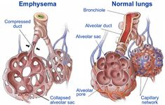Emphysema: Everything You Need To Know