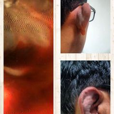 #earbud #illeffects - this is what happens when you use ear bud- either your #earcanal gets damaged or your #eardrum gets #perforation or #pinna shape changes - #perichondritis Read more in my #blog - http://drkumaresh.blogspot.in/2013/01/avoid-using-buds-for-cleaning-wax-or.html