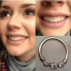 Smiley piercing