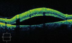 If you've never seen an OCT, take a look at online images; AMAZING! OCT Of A Retinal Detachment