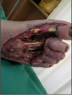 Voltage electrical injuries high