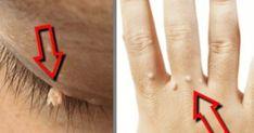 Τα θηλώματα ή κρεατοελιές είναι ακαλαίσθητες μεταβολές στο δέρμα που οφείλονται στον ιό των ανθρώπινων θηλωμάτων (HPV), ο οποίος περιλαμβάνει πάνω από 100