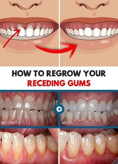 How To Regrow Your Receding Gums Receding gums is the phenomenon that occurs when a part of the gingival tissue surrounding the tooth is destroyed, revealing the tooth more and more until its root can be seen. How To Regrow Your Receding Gums! Teeth Health, Healthy Teeth, Dental Health, Dental Care, Gum Health, Oral Health, Receeding Gums, Dental Problems, Teeth Care