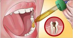 Môj zubár bol ohromený, keď som mu povedal návod, ako sa mi uľavilo od príšernej bolesti zubov
