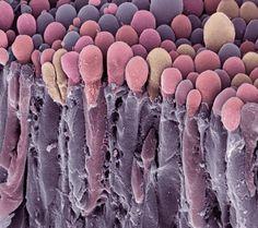 cellule del plesso coriodeo: i fiammiferi nel cervello