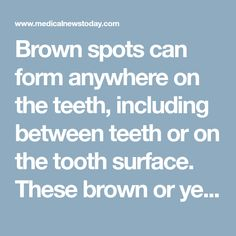 Brown spots can form anywhere on the teeth, including between teeth or on the tooth surface. These brown or yellowish stains can result from dental procedures, but they more commonly indicate cavities or a buildup of plaque. Here, learn about the many causes, and potential ways to remove these stubborn stains.