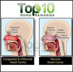 Nasal Congestion illustration