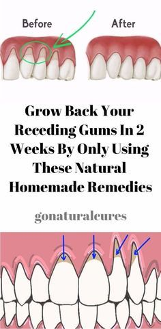 What bothers the dentist mostly is the problem with the 'receding gums'. No matter how irrelevant this problem might seem, receding gums can cause unbearable pain. In fact, they can withdraw and ma… Gum Health, Dental Health, Oral Health, Grow Back Receding Gums, Remedies For Tooth Ache, Oral Hygiene, Health Advice, Stage, Cell Structure