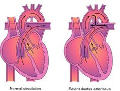 PDA; ↑ pulmonary BF
